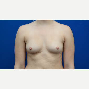 25-34 year old woman treated with Breast Augmentation before 3103008