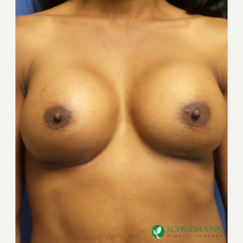 35-44 year old woman treated with Breast Augmentation after 3320037