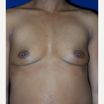35-44 year old woman treated with Breast Augmentation before 3320037