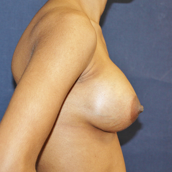 25-34 year old woman treated with Sientra Breast Implants after 3814420