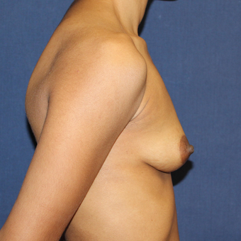 25-34 year old woman treated with Sientra Breast Implants before 3814420