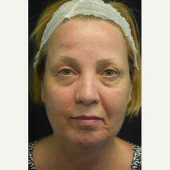 55-64 year old woman treated with Eye Bags Treatment before 3179524