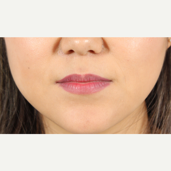 25-34 year old woman treated with Lip Augmentation before 3419606