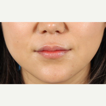 25-34 year old woman treated with Lip Augmentation after 3419606