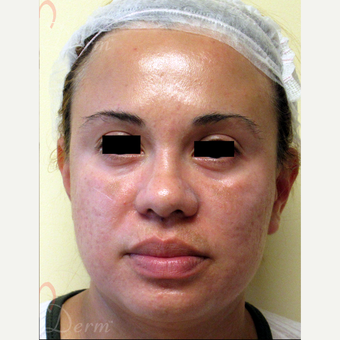 25-34 year old woman treated with Acne Scars Treatment after 3375118