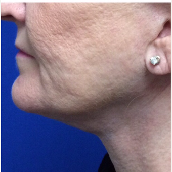 62 Years Young Woman with Her Chin Up after Kybella after 2684604