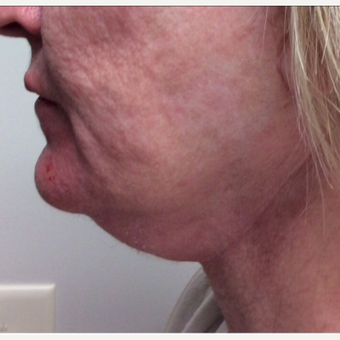 62 Years Young Woman with Her Chin Up after Kybella before 2684604
