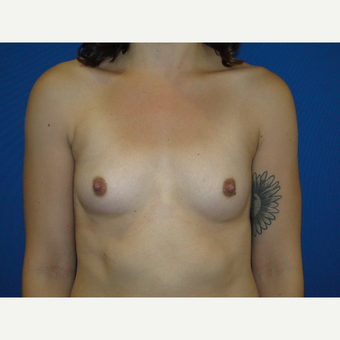 Breast Augmentation with 400 cc Silicone before 3776074