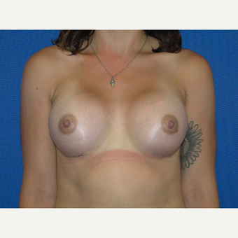 Breast Augmentation with 400 cc Silicone after 3776074