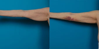 66-year-old woman treated with Liposuction. before 3287634