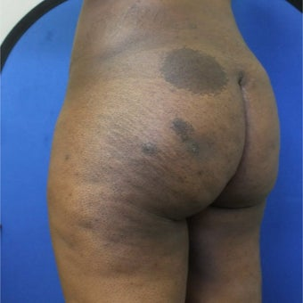 18-24 year old woman treated with Slim Lipo after 1784835