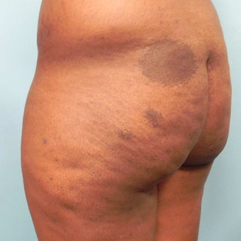 18-24 year old woman treated with Slim Lipo before 1784835