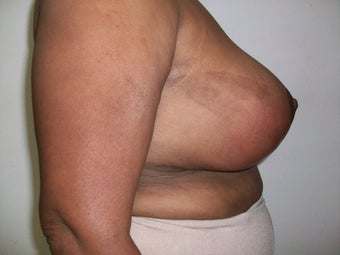 Female 54 fears old, treated for Hypertrophy of breast. 1433599