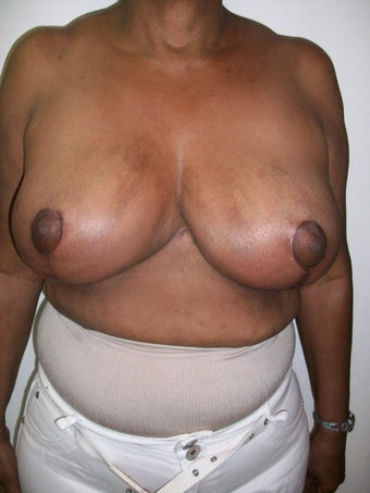 Female 54 fears old, treated for Hypertrophy of breast. after 1433599