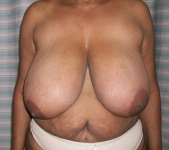 Female 54 fears old, treated for Hypertrophy of breast. before 1433599