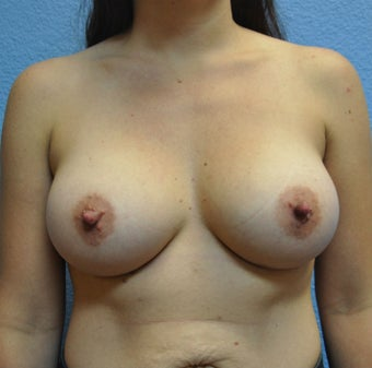 Breast Augmentation, Breast Implants after 1166153