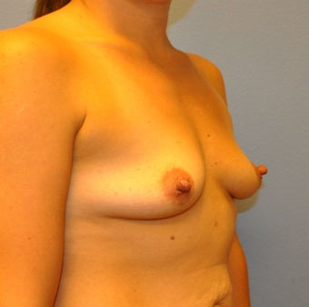 Breast Augmentation, Breast Implants 1166153