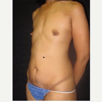 45-54 year old woman treated with Mommy Makeover before 3043494