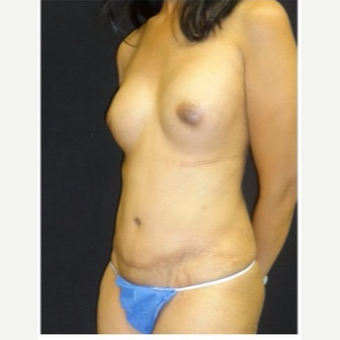 45-54 year old woman treated with Mommy Makeover after 3043494