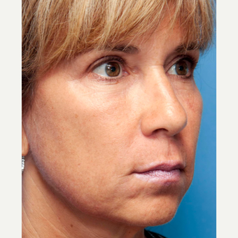 45-54 year old woman treated with INFINI Skin Rejuvenation after 2899588