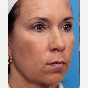 45-54 year old woman treated with INFINI Skin Rejuvenation before 2899588
