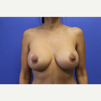 Transaxillary Subpectoral Breast Augmentation w/ Silicone Implants after 3455025