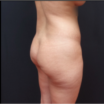 25-34 year old woman treated with Power-Assisted Liposuction (PAL) before 3267164