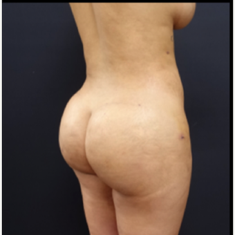 25-34 year old woman treated with Power-Assisted Liposuction (PAL) after 3267164