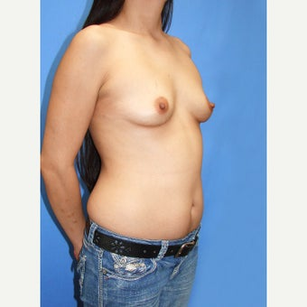 25-34 year old woman treated with Breast Fat Transfer before 2110929
