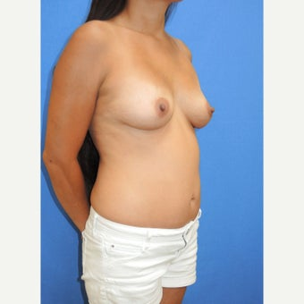 25-34 year old woman treated with Breast Fat Transfer after 2110929