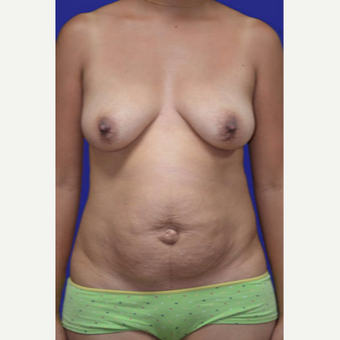 25-34 year old woman treated with Mommy Makeover before 3519773