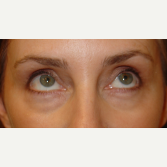 35-44 year old woman treated with Eye Bags Treatment before 1558929