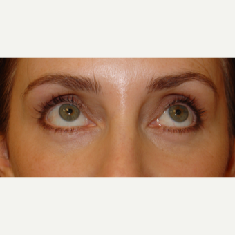 35-44 year old woman treated with Eye Bags Treatment after 1558929