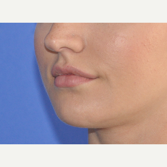 25-34 year old woman treated with Lip Augmentation before 3300141