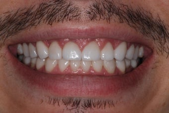 Smile Makeover was a Game Changer for 30-Something Guy after 1013558