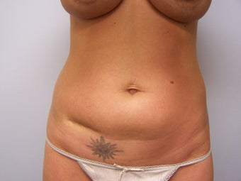 Scar Revision with fat transfer 981752