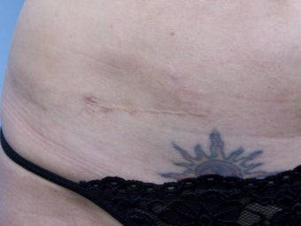 Scar Revision with fat transfer after 981752
