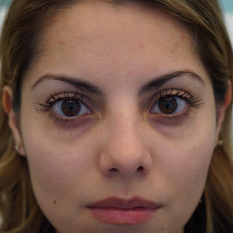 25-34 year old woman treated with Injectable Fillers before 3287903