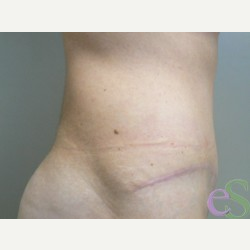 42 year old woman treated with Tummy Tuck after 3484935