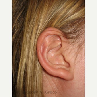 18-24 year old woman treated with Ear Surgery
