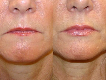 Fuller Lips with Lip Injections before 1358684