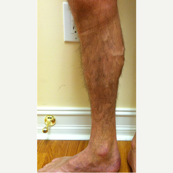 Varicose Vein Treatment - 25-34 year old man treated with EVLT