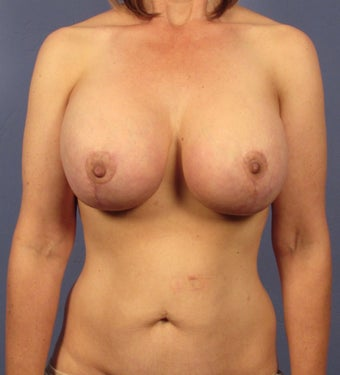 Breast Rejuvenation in a 45 year old after 1506302