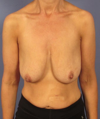 Breast Rejuvenation in a 45 year old before 1506302