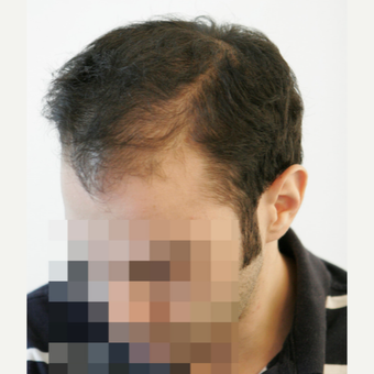 25-34 year old man treated with FUE Hair Transplant before 3068869
