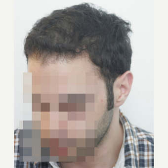 25-34 year old man treated with FUE Hair Transplant after 3068869