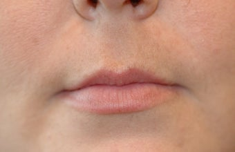 Juvederm in Upper Lip before 872407