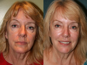Sculptra before 475243