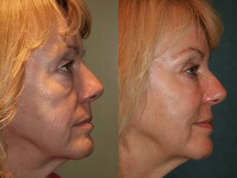 Sculptra after 475243