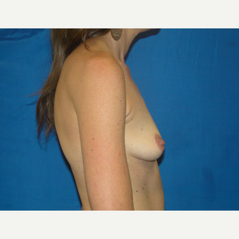 Breast Augmentation with 500 cc Silicone Implants before 3495773
